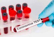 عينات فيروس كورونا- تعبيرية