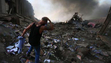 أحد الضحايا الناجين من تفجير بيروت في الميناء امس الثلاثاء