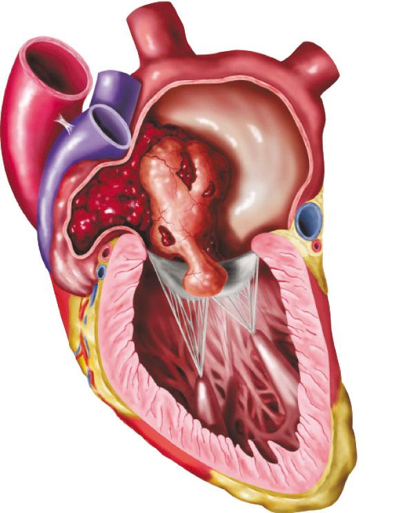 ارتخاء الصمام الميترالي أحد أمراض القلب Alghad